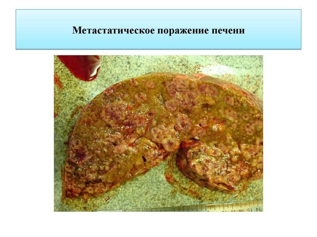 метастаза в печени сколько живут