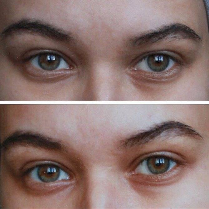 быстрое средство от синяков под глазами