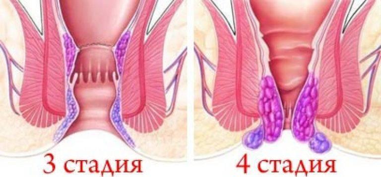 Четвертая (последняя) стадия (степень) геморроя: признаки, лечение, операция, фото