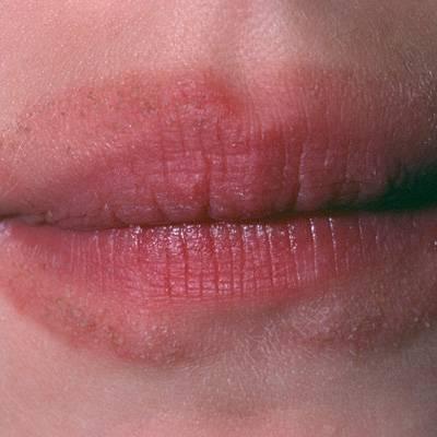 Лечение перорального дерматита на губах