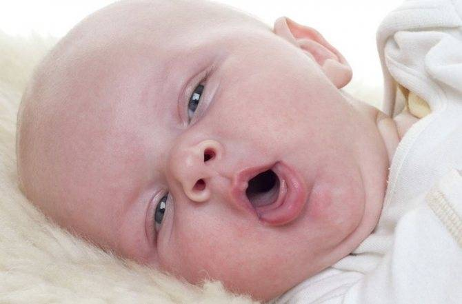 Как вылечить насморк и кашель у ребенка 3 месяцев?