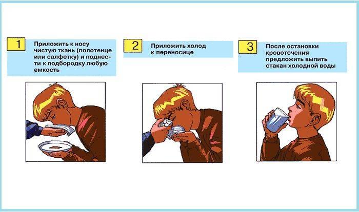 как сделать чтоб пошла кровь из носа