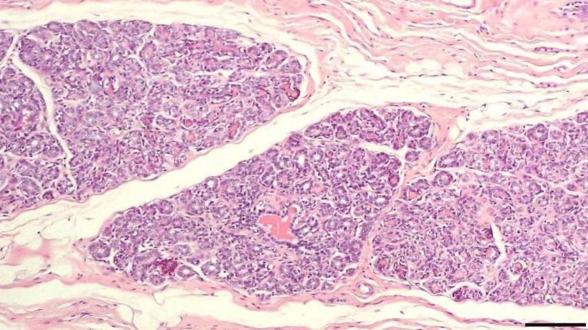 Внутрипротоковая папиллома молочной железы лечение после операции