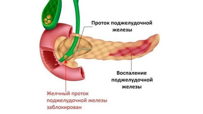 панкреатит и холецистит симптомы