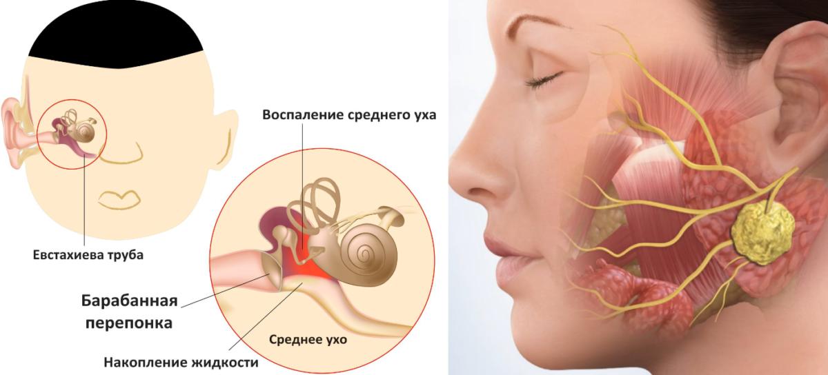 Зуд в ушах, чешутся уши внутри: причины и лечение
