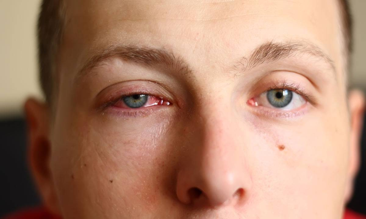 аллергический конъюнктивит лечение препараты