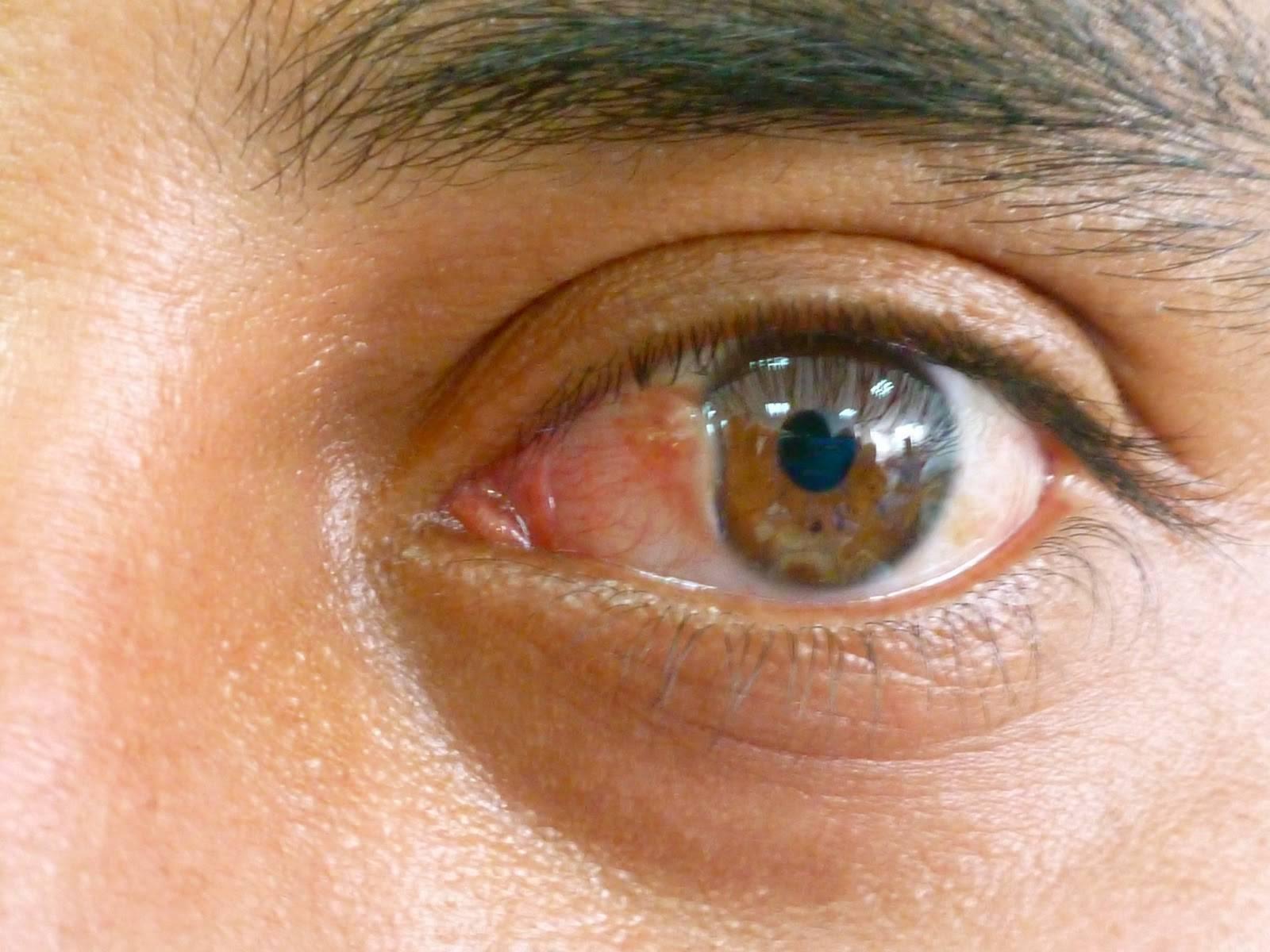 Птеригиум глаза: причины, симптомы и лечение