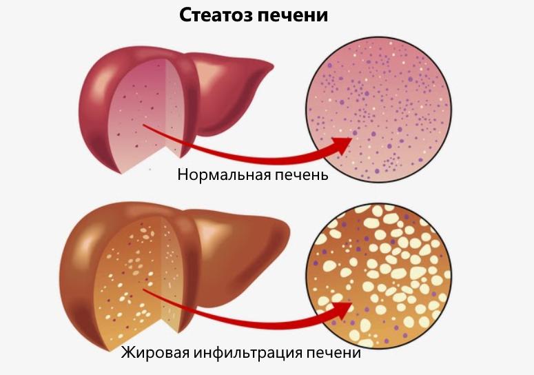алкогольный стеатоз печени