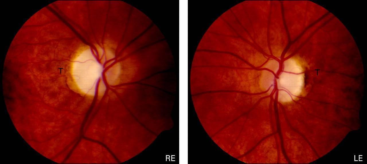атрофия зрительного нерва у новорожденных