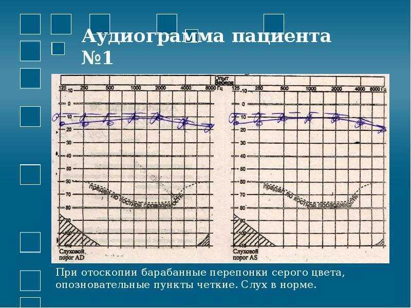 аудиограмма при нейросенсорной тугоухости
