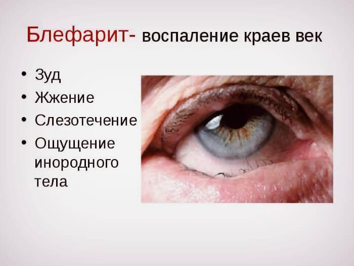заболевание глаз блефарит лечение