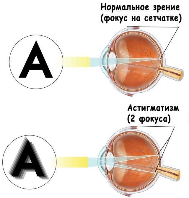 сложный гиперметропический астигматизм