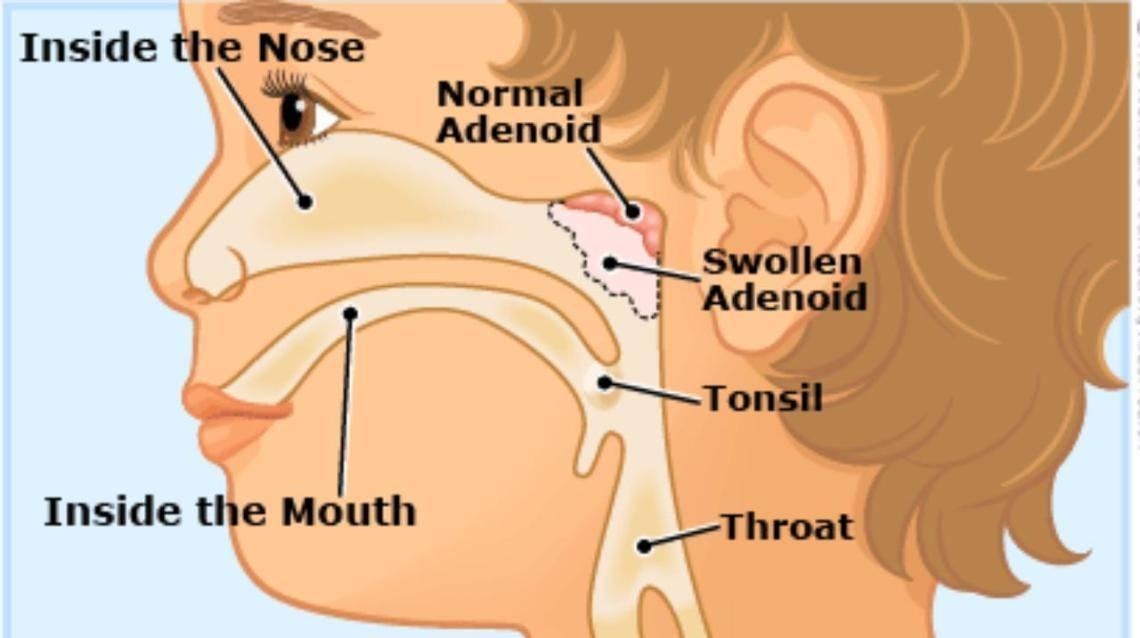 народное лечение аденоидов у детей