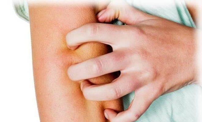 чешется кожа при болезни печени