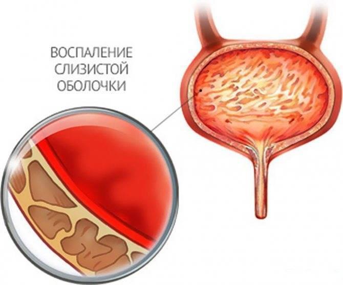 Как лечить шеечный цистит мочевого пузыря?
