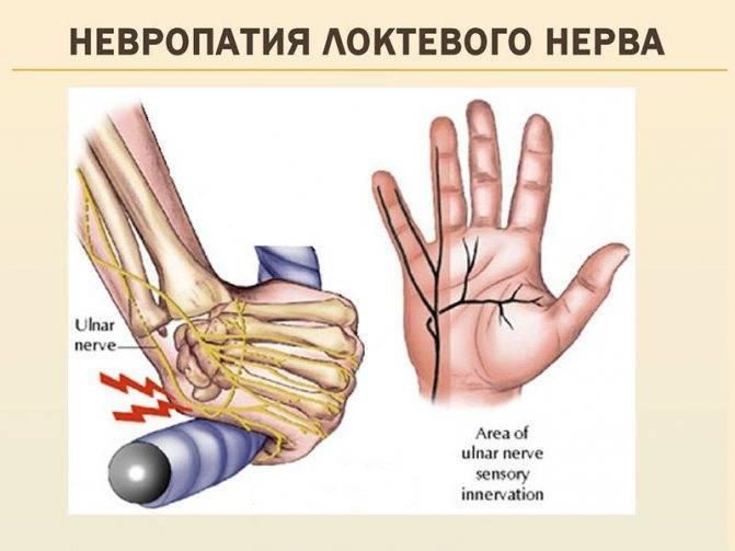 Неврит локтевого нерва: симптомы, лечение, причины и диагностика