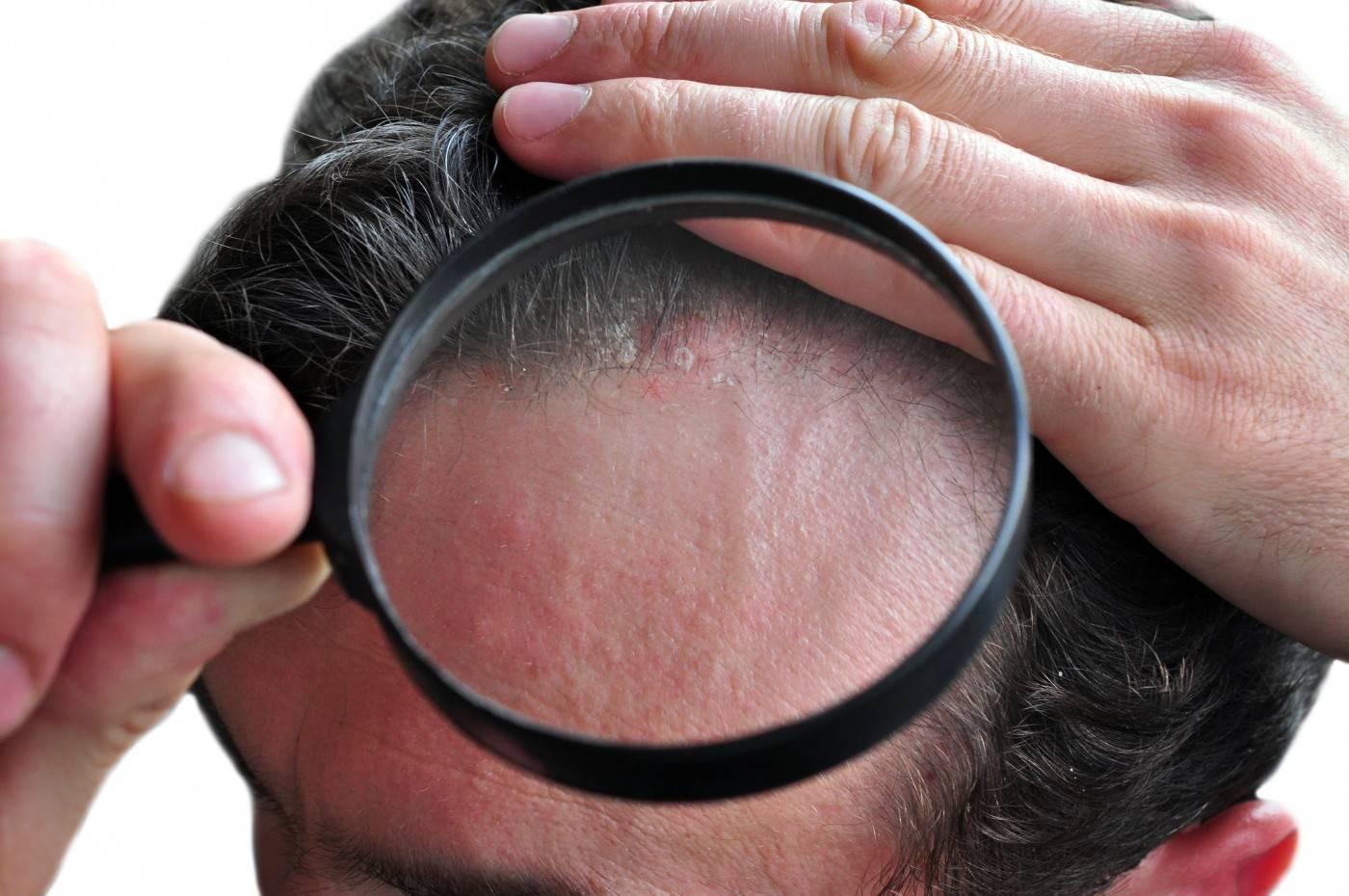 Народные средства в лечении себорейного дерматита