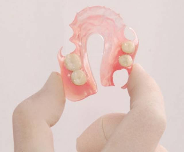 Гибкие зубные протезы: цены и стоимость, страница 2