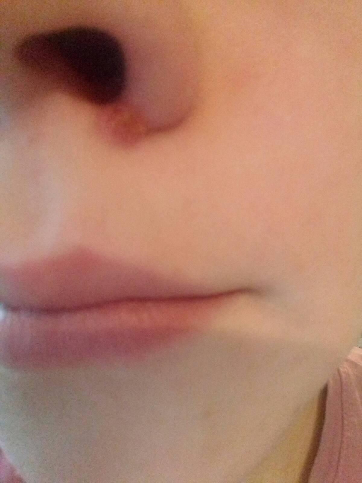 почему в носу образуются болячки
