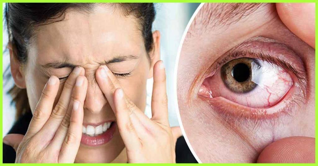 покраснение глаза лечение в домашних условиях