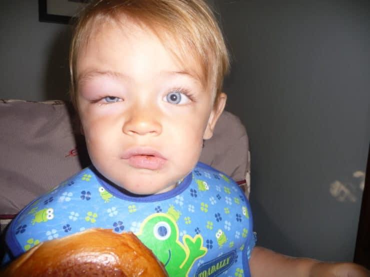 укус комара на глазу