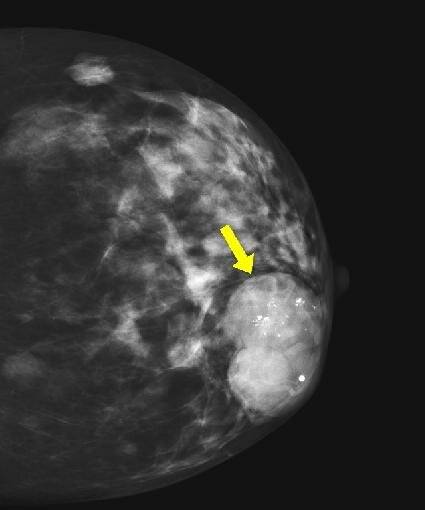 Самые частые причины почему болит фиброаденома молочной железы и как это связано с раком