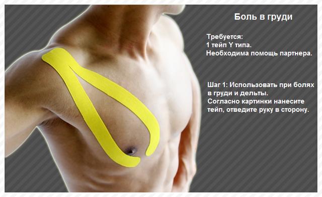 грудная невралгия симптомы