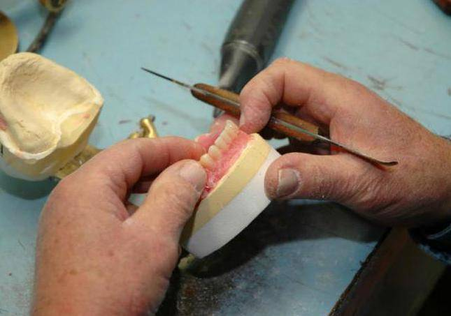 изготовление бюгельного протеза