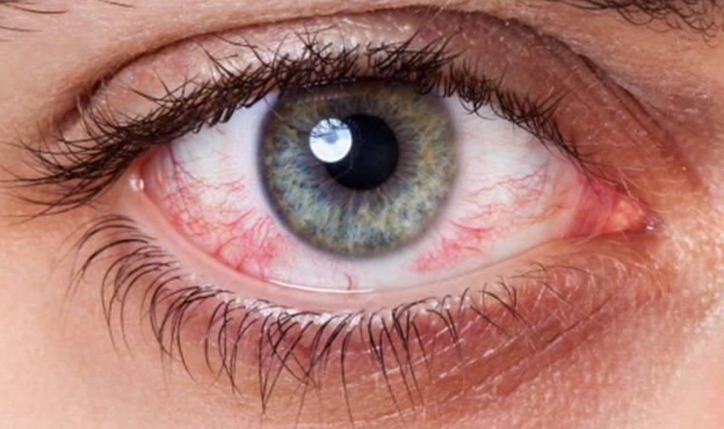 сухость глаза лечение народными средствами