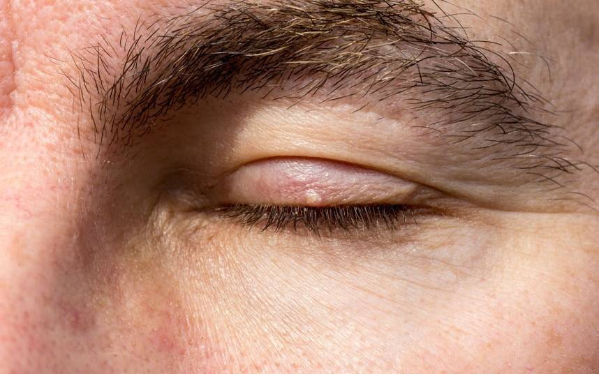 жировик на глазу как избавиться
