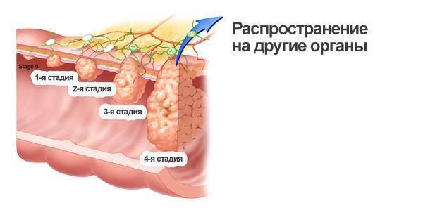 геморрой симптомы или рак