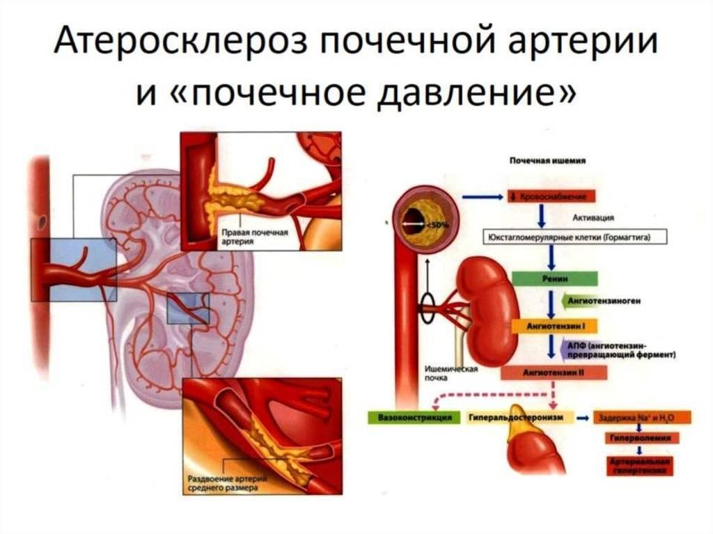 Атеросклероз сосудов почек: симптомы и методы лечения