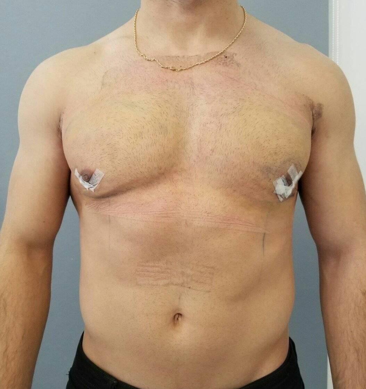 истинная гинекомастия у мужчин лечение
