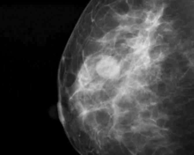 что такое диффузная мастопатия молочной железы
