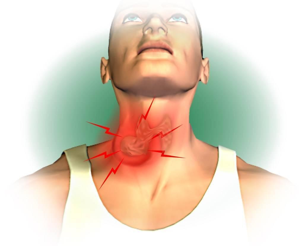 ком в горле при щитовидной железе
