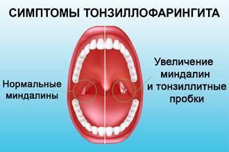 Чем убить стрептококк в горле