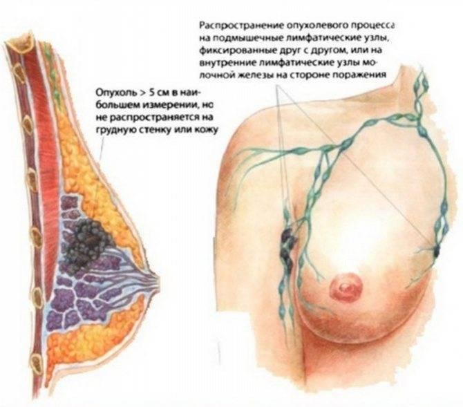 после пункции молочной железы опухоль увеличилась