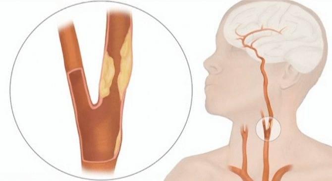 атеросклероз брахиоцефальных артерий лечение