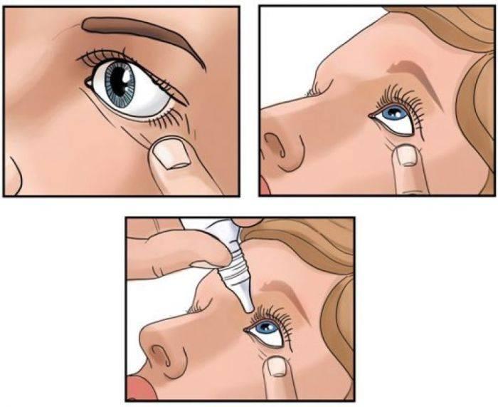 Капли в уши, как правильно закапывать