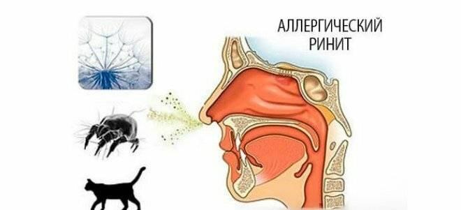 Почему из носа течет вода – причины появления прозрачной жидкости 2019