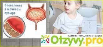 лечение цистита у детей 5 лет
