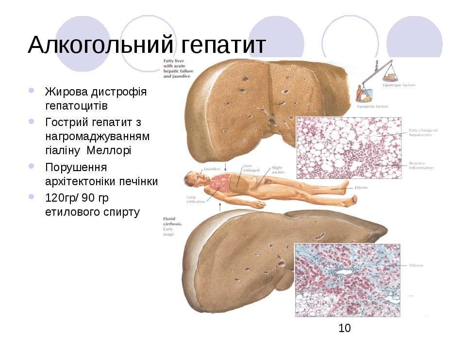 Алкогольный гепатит токсический, лечение  - cmt-kazan.ru