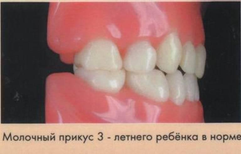 сколько зубов в молочном прикусе