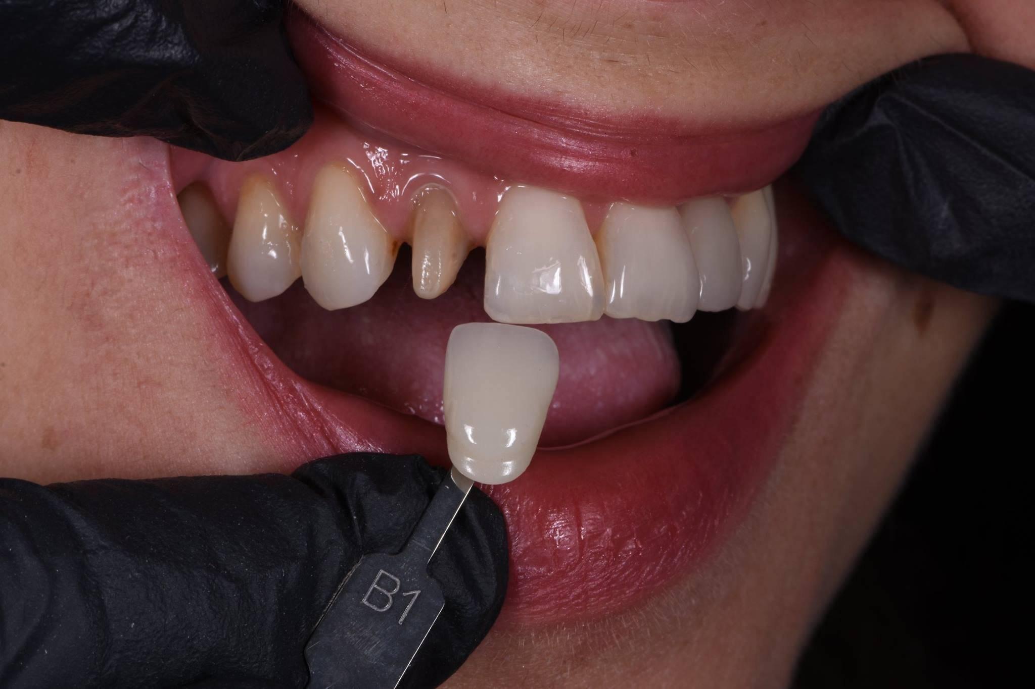 Коронки на зубы: какие бывают и какие лучше