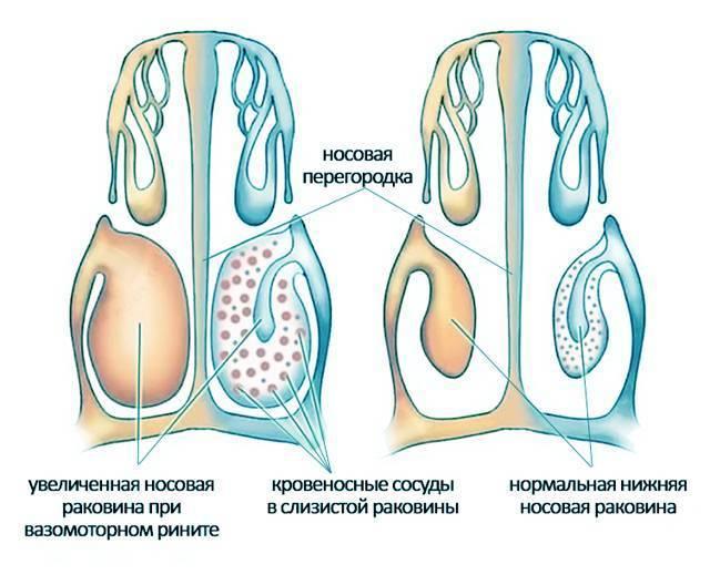 вазомоторный насморк