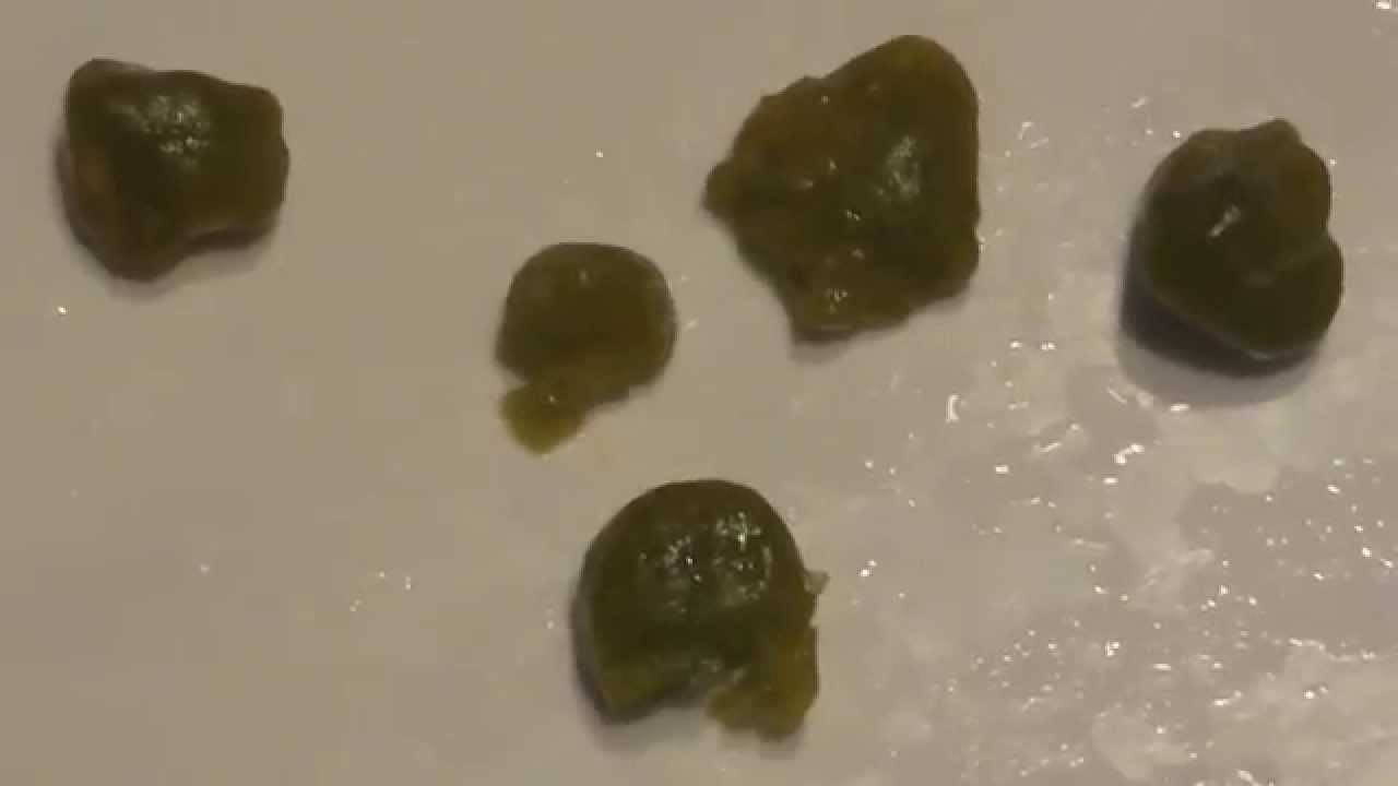 очищение печени от паразитов