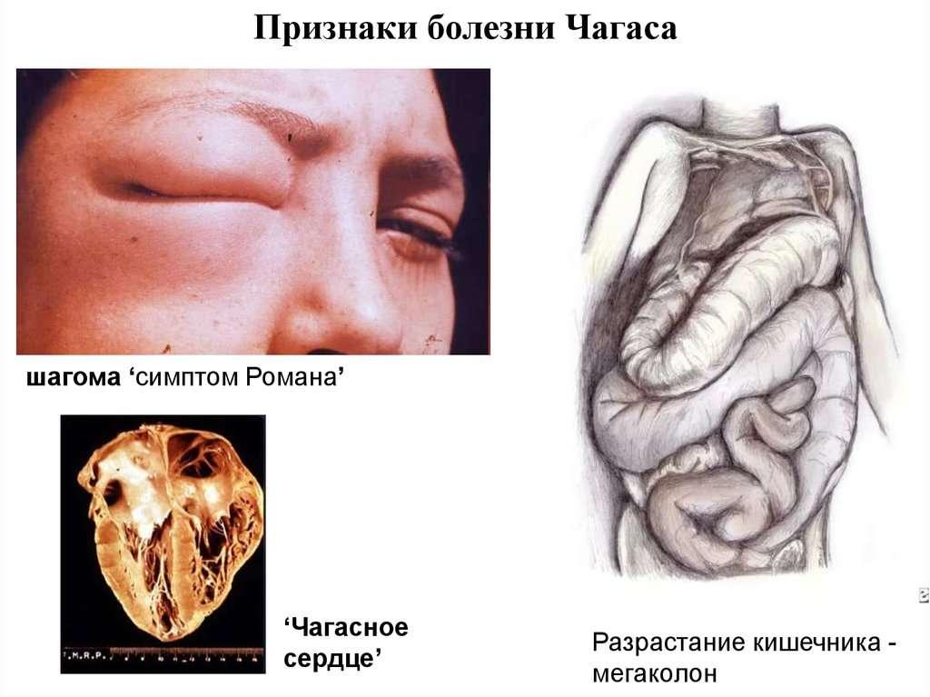 Болезнь шагаса — википедия с видео // wiki 2
