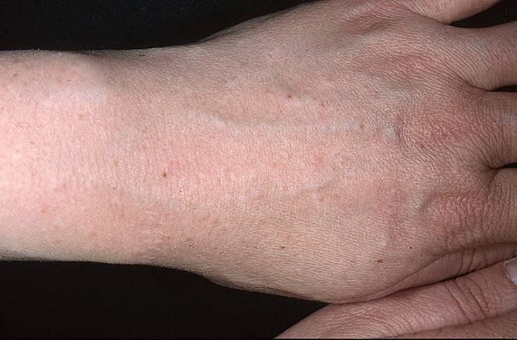 Солнечный дерматит — лечение, причины, симптомы