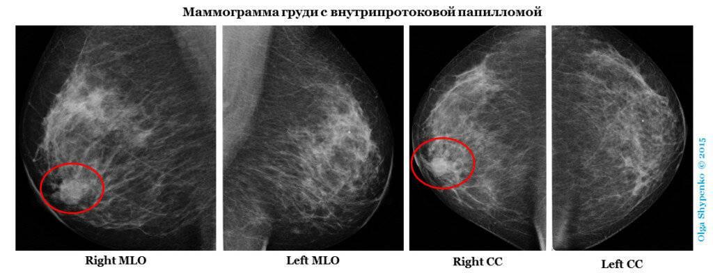 операция внутрипротоковая папиллома молочной железы