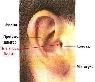 Причины и лечение шишки за ухом у ребёнка